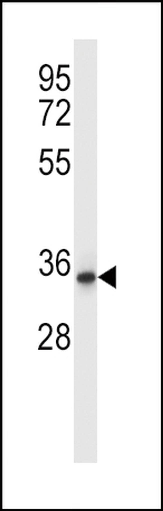 QPRT Rabbit anti-Human, Polyclonal, Invitrogen 400 µL; Unconjugated