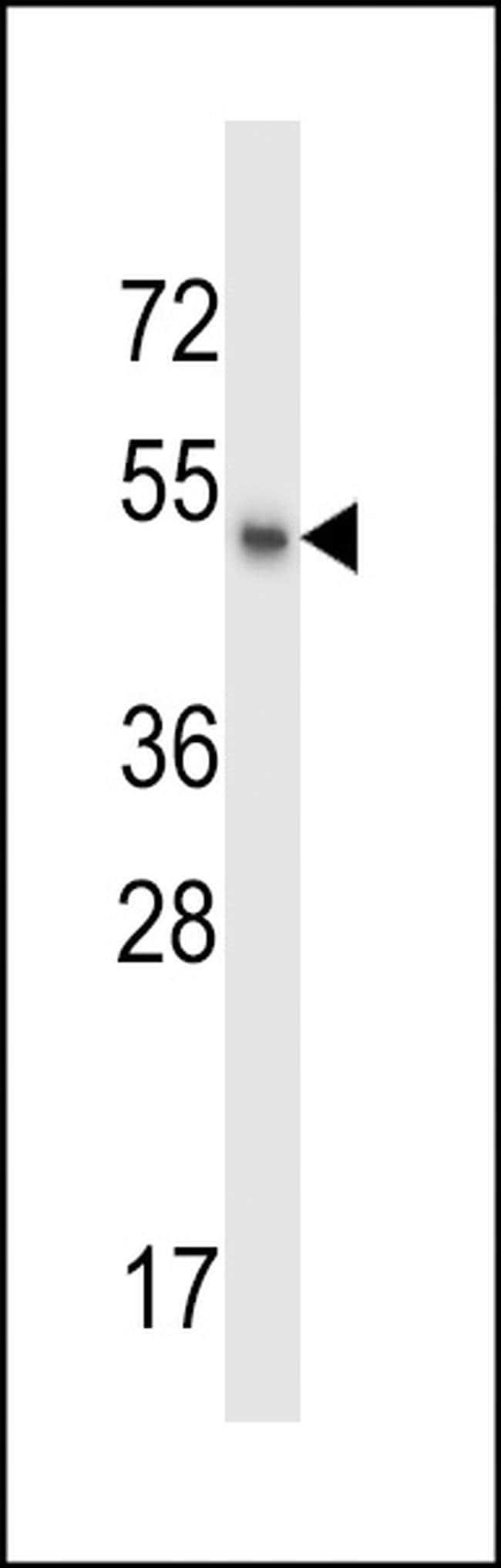 MSL1 Rabbit anti-Human, Polyclonal, Invitrogen 400 µL; Unconjugated