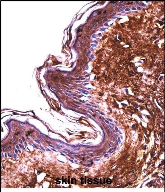 PPT2 Rabbit anti-Human, Polyclonal, Invitrogen 400 µL; Unconjugated