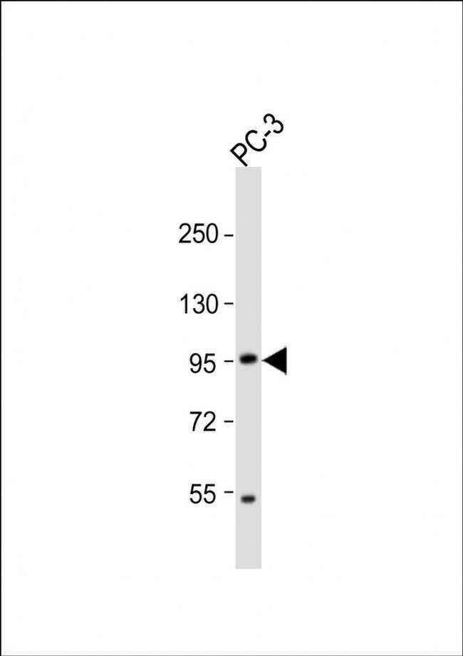 PKN3 Rabbit anti-Human, Mouse, Polyclonal, Invitrogen 400 µL; Unconjugated