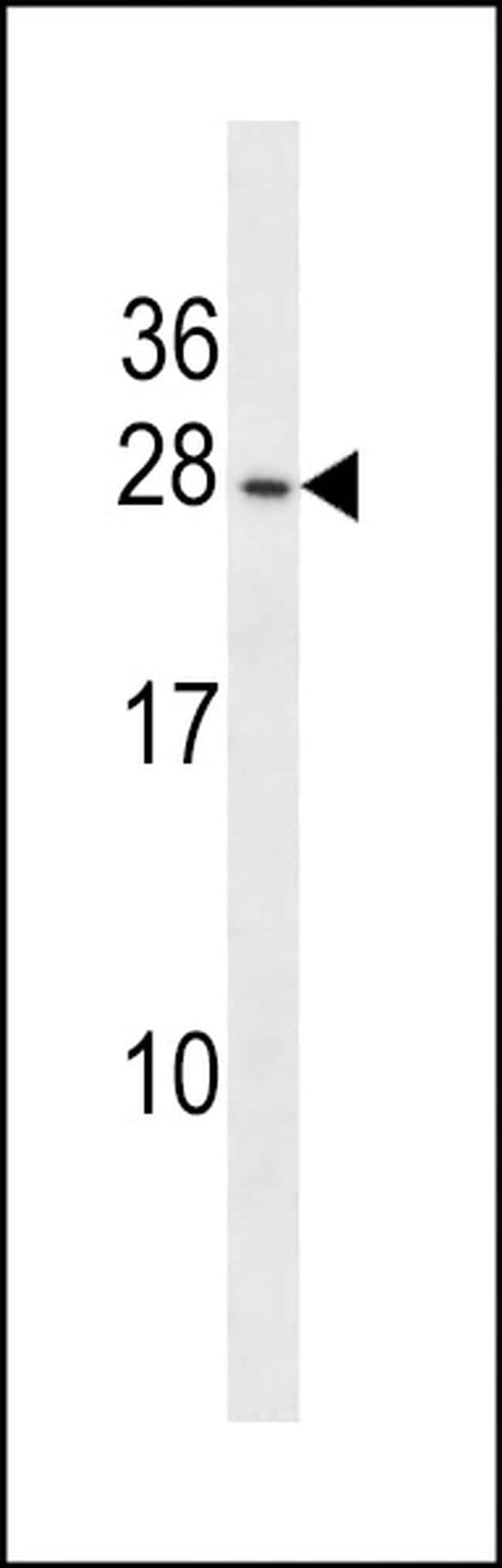 PIGP Rabbit anti-Human, Polyclonal, Invitrogen™ 400 μL; Unconjugated Primary Antibodies Pi to Pm