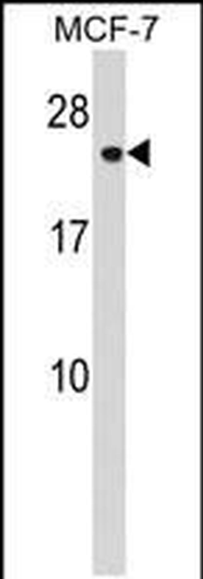 CHMP1A Rabbit anti-Human, Polyclonal, Invitrogen 400 µL; Unconjugated