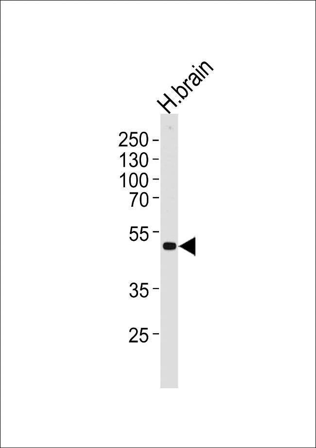 Kir2.2 (KCNJ12) Rabbit anti-Human, Polyclonal, Invitrogen 400 µL;