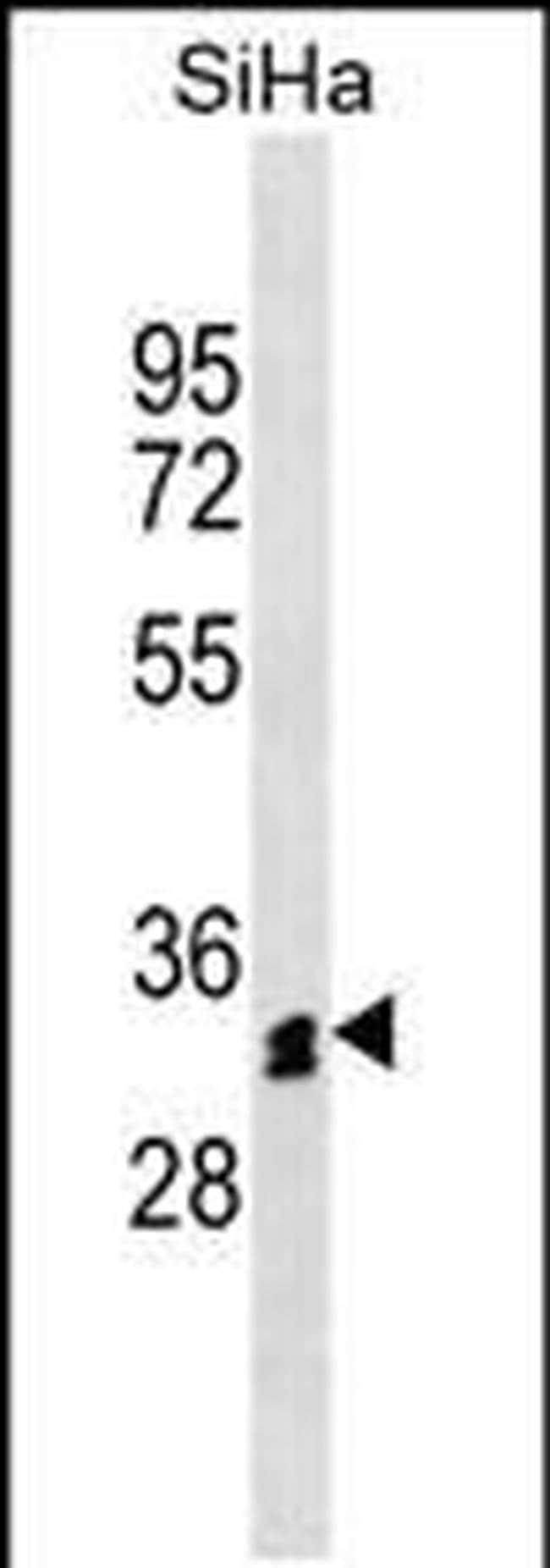 OR51M1 Rabbit anti-Human, Polyclonal, Invitrogen 400 µL; Unconjugated