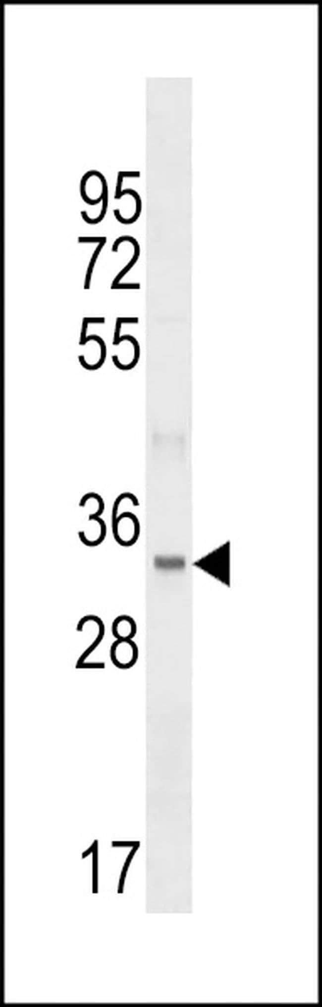 FBLL1 Rabbit anti-Human, Polyclonal, Invitrogen 400 µL; Unconjugated