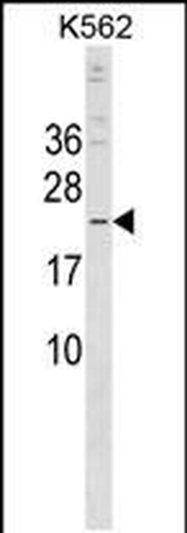 CRYBB3 Rabbit anti-Human, Polyclonal, Invitrogen 400 µL; Unconjugated