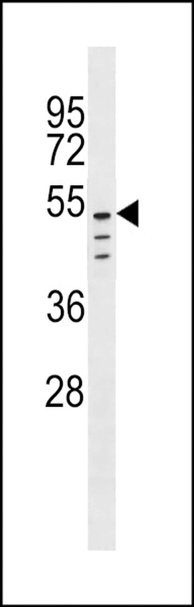 CLEC18C Rabbit anti-Human, Polyclonal, Invitrogen 400 µL; Unconjugated