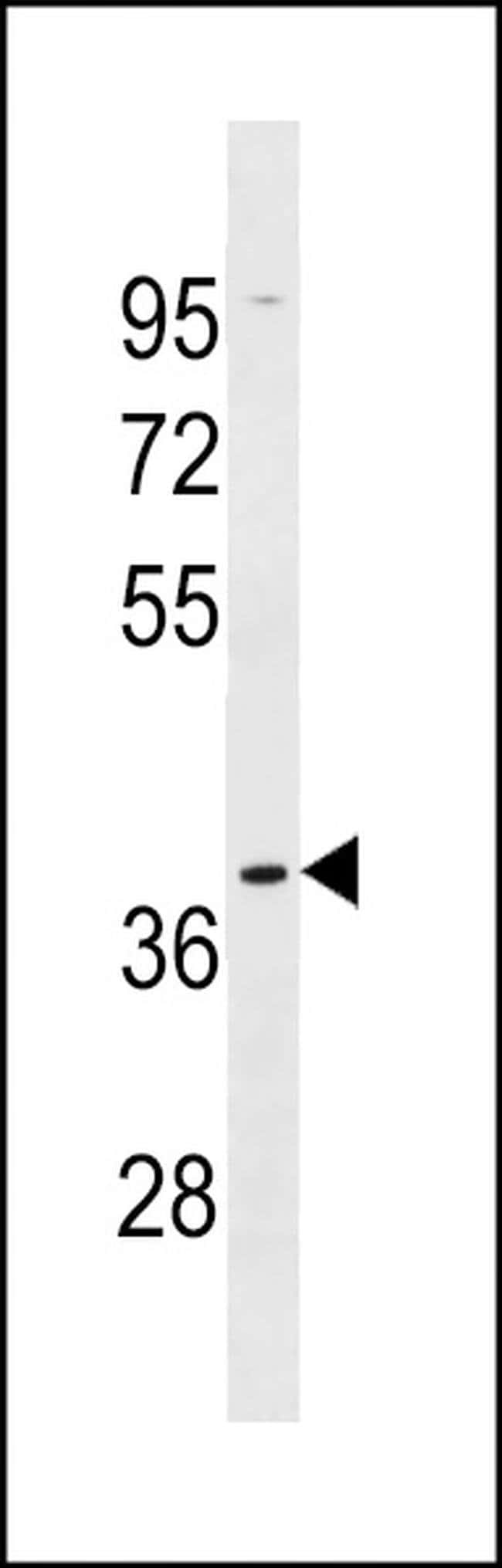 OR5AK2 Rabbit anti-Human, Polyclonal, Invitrogen 400 µL; Unconjugated