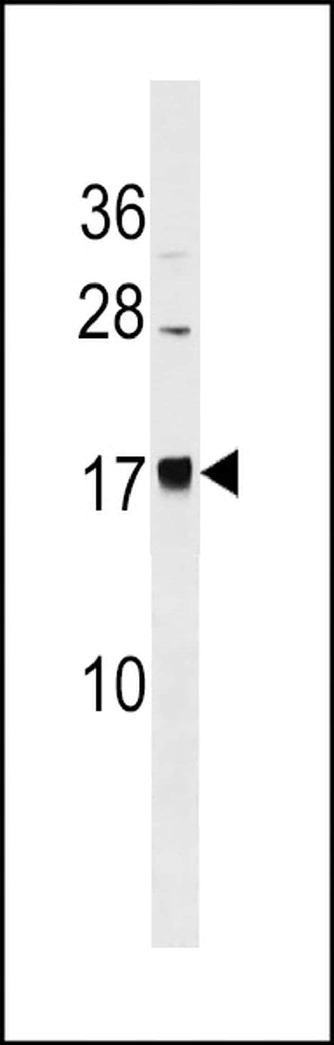 BLACE Rabbit anti-Human, Polyclonal, Invitrogen 400 µL; Unconjugated