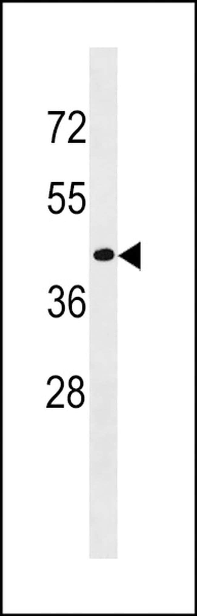 CD200R1L Rabbit anti-Human, Polyclonal, Invitrogen 400 µL; Unconjugated