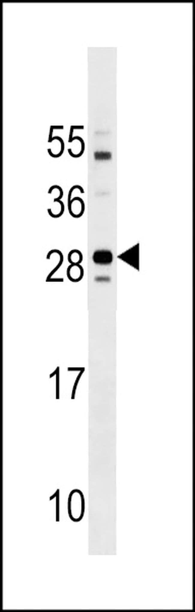 Tmem125 Rabbit anti-Mouse, Polyclonal, Invitrogen 400 µL; Unconjugated