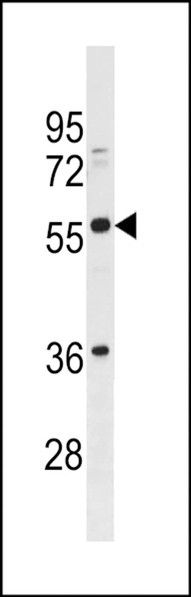 BTN2A3P Rabbit anti-Human, Polyclonal, Invitrogen 400 µL; Unconjugated