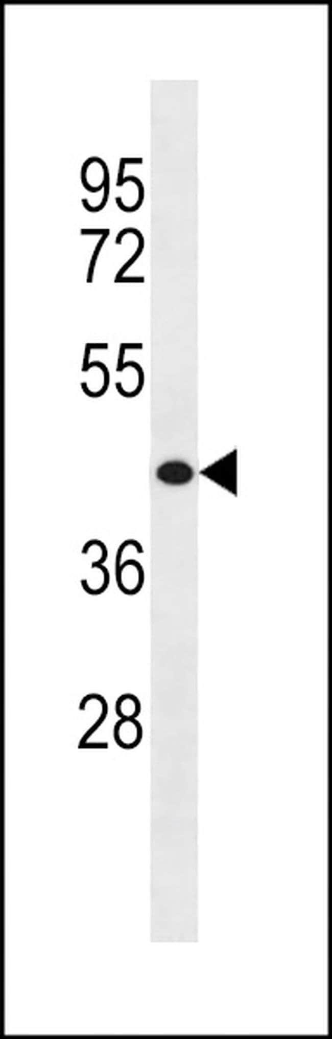 WASH2P Rabbit anti-Human, Polyclonal, Invitrogen 400 µL; Unconjugated