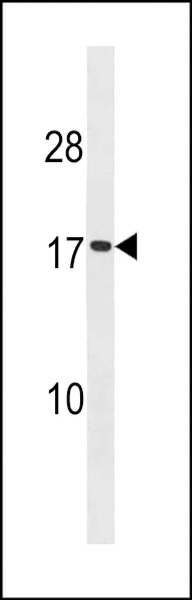 SEC11A Rabbit anti-Human, Polyclonal, Invitrogen 400 µL; Unconjugated