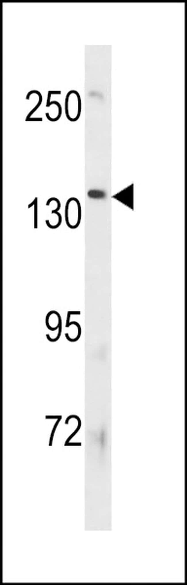 ATP8B3 Rabbit anti-Human, Polyclonal, Invitrogen 400 µL; Unconjugated