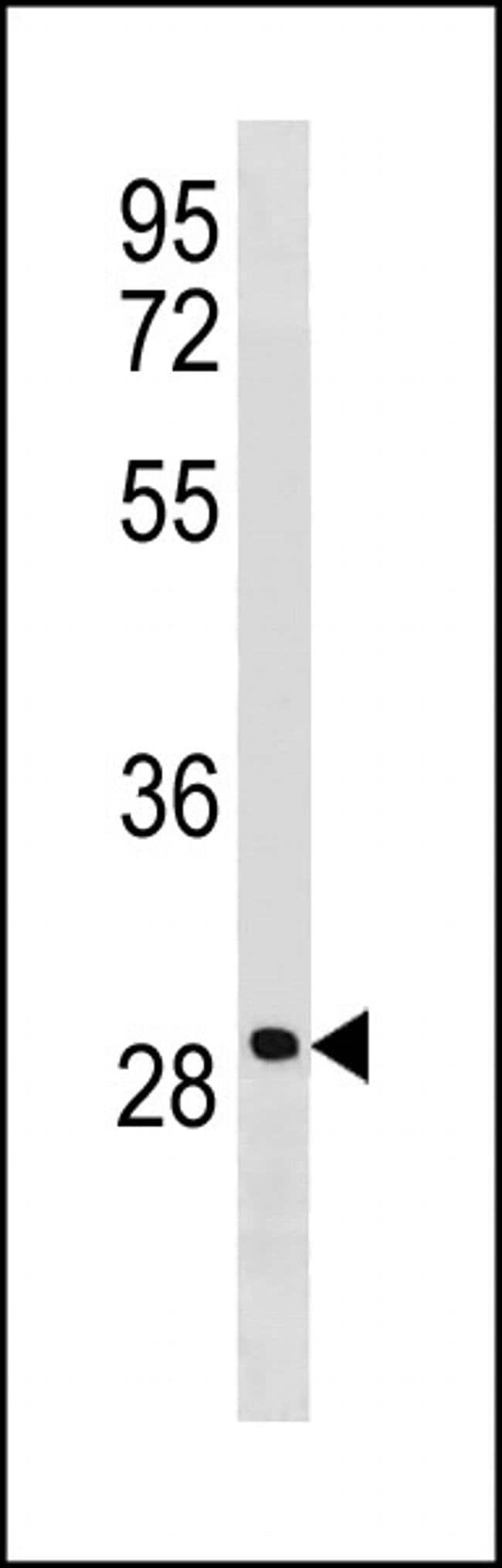 LRRC61 Rabbit anti-Human, Polyclonal, Invitrogen 400 µL; Unconjugated