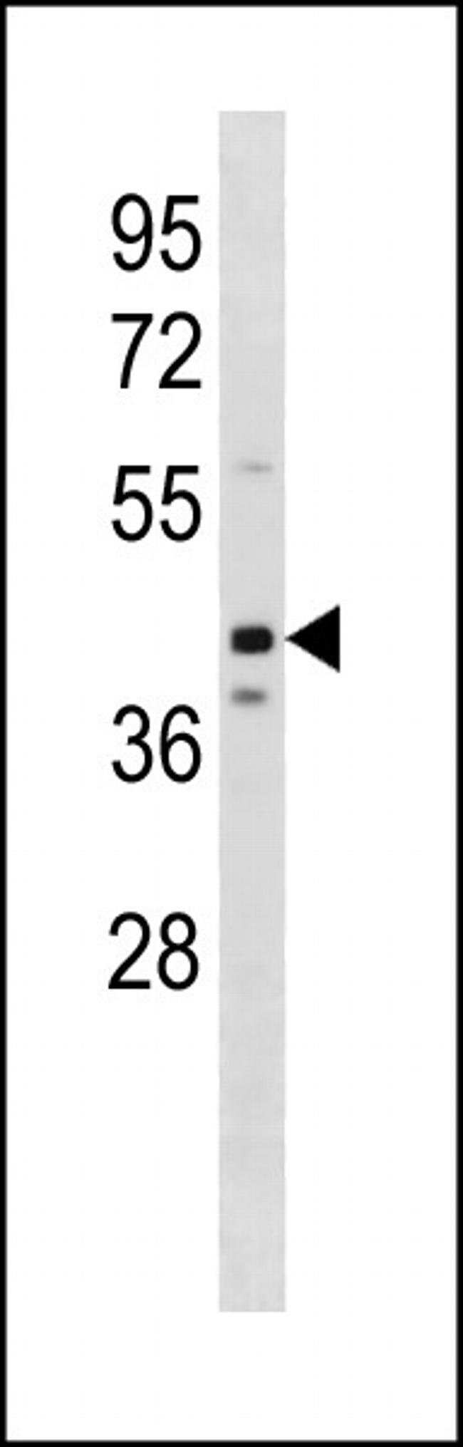OLFM3 Rabbit anti-Human, Mouse, Polyclonal, Invitrogen 400 µL; Unconjugated