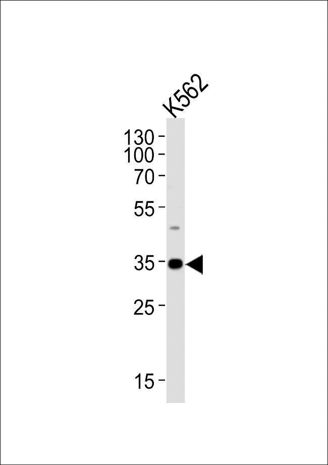 BBS5 Rabbit anti-Human, Polyclonal, Invitrogen 400 µL; Unconjugated