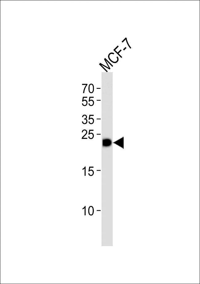 GSTM4 Rabbit anti-Human, Polyclonal, Invitrogen 400 µL; Unconjugated