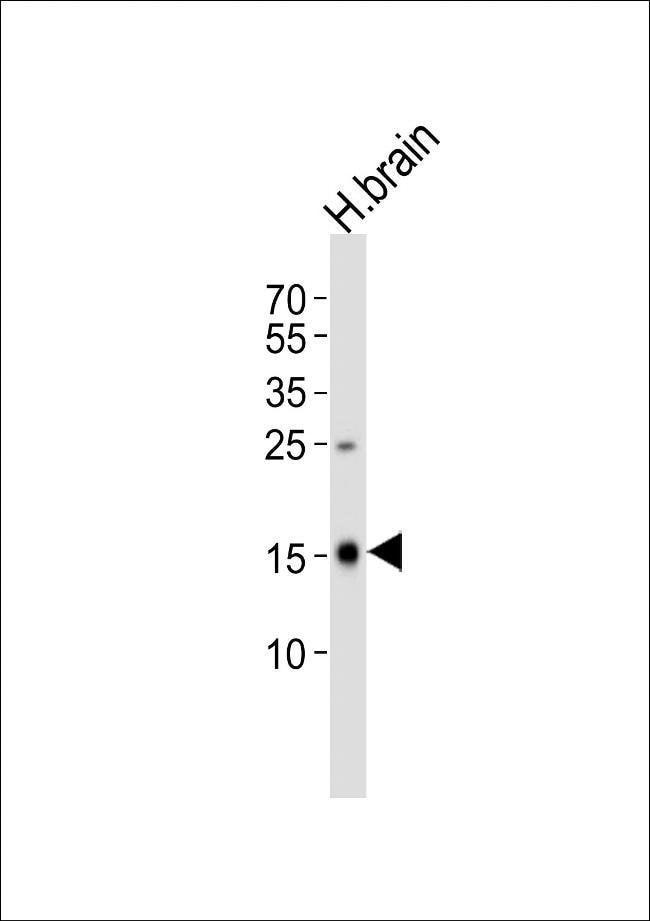 FXYD6 Rabbit anti-Human, Mouse, Polyclonal, Invitrogen 400 µL; Unconjugated