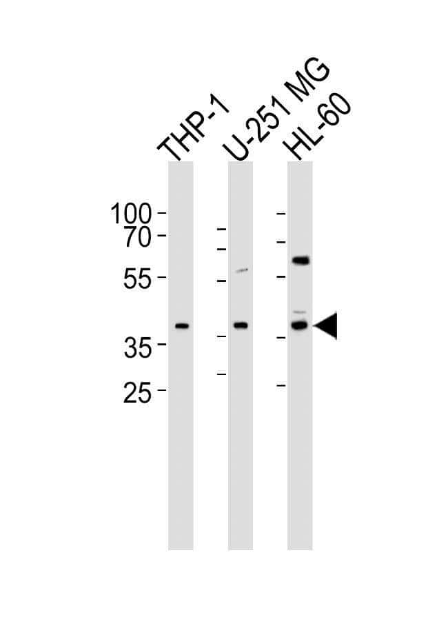 RAD9B Rabbit anti-Human, Polyclonal, Invitrogen 400 µL; Unconjugated