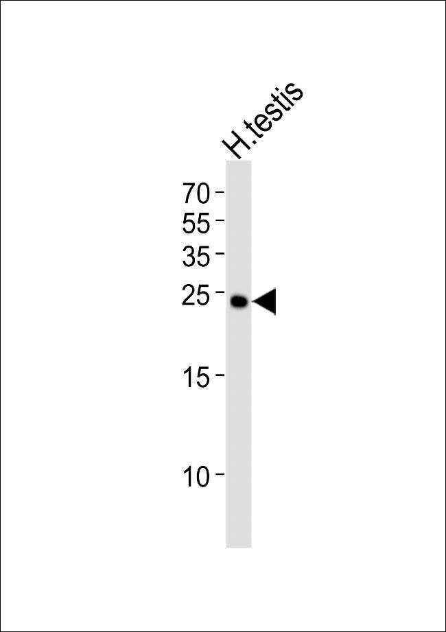 IZUMO2 Rabbit anti-Human, Polyclonal, Invitrogen 400 µL; Unconjugated