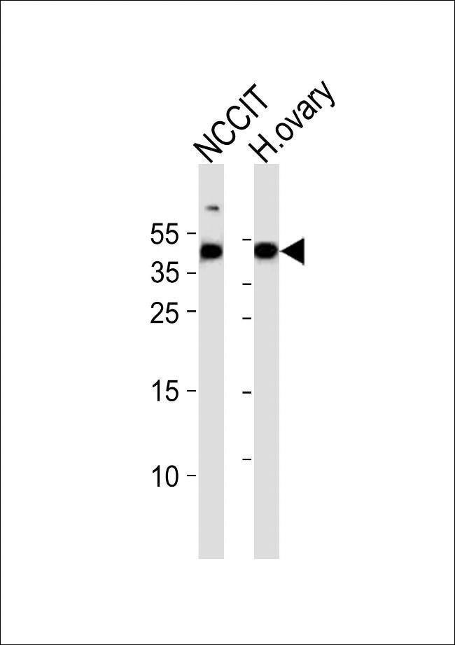 ESRG Rabbit anti-Human, Polyclonal, Invitrogen 400 µL; Unconjugated