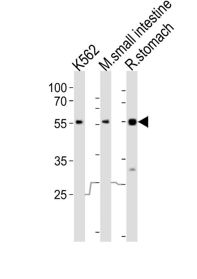 FRK Rabbit anti-Human, Mouse, Rat, Polyclonal, Invitrogen 400 µL;