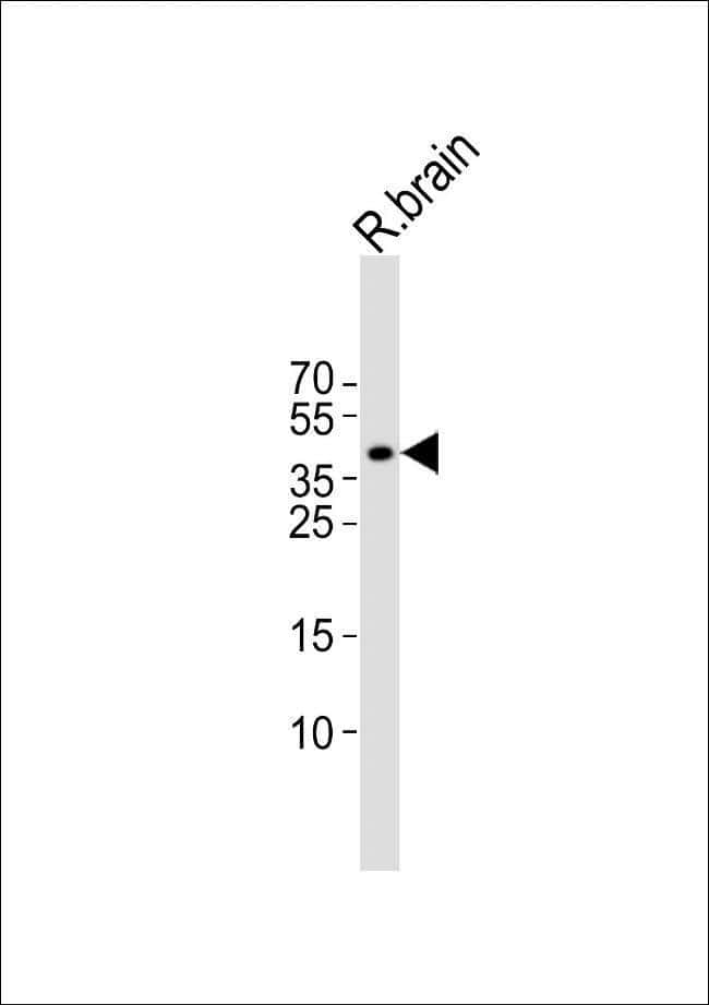 ISL1 Rabbit anti-Rat, Polyclonal, Invitrogen 400 µL; Unconjugated