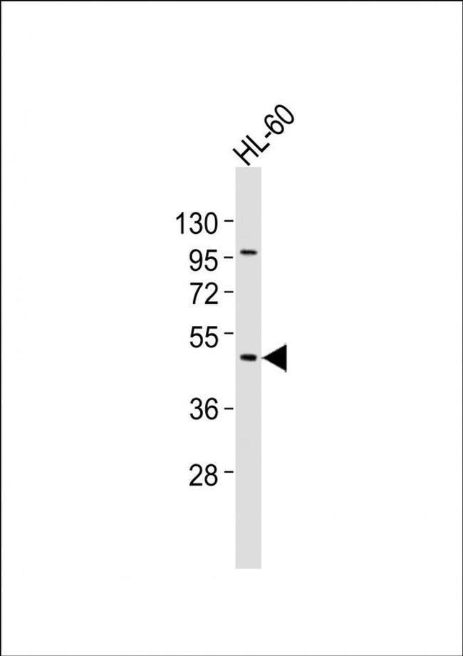 CHST12 Rabbit anti-Human, Polyclonal, Invitrogen 400 µL; Unconjugated