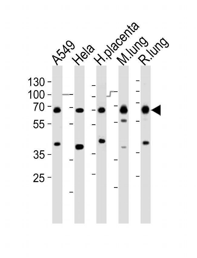EHD2 Rabbit anti-Human, Mouse, Rat, Polyclonal, Invitrogen 400 µL;