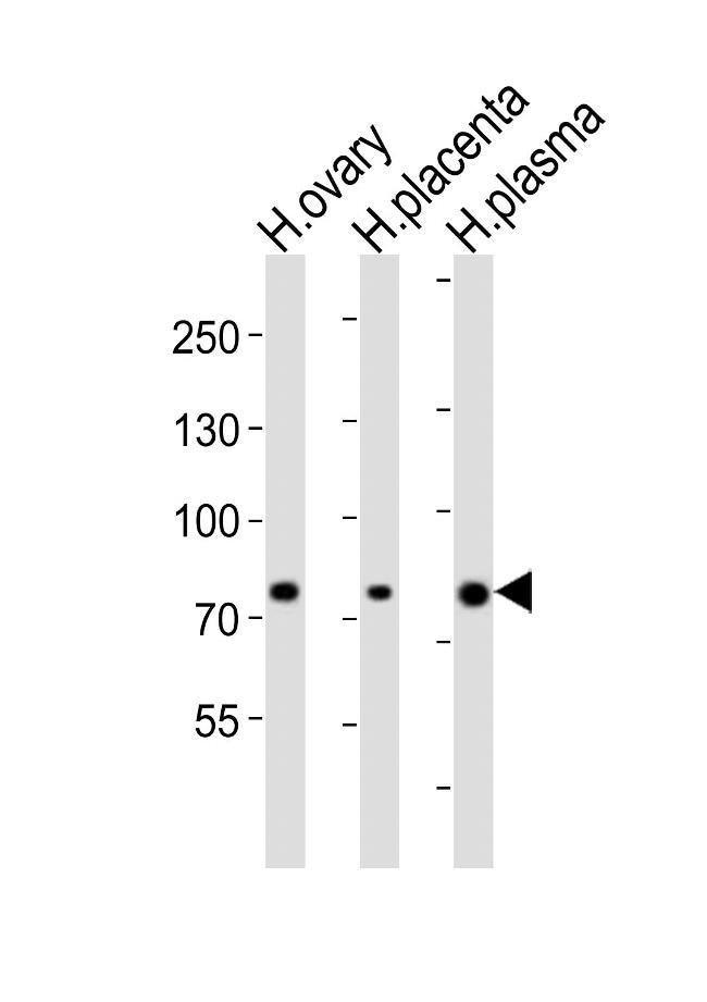 ITGB8 Rabbit anti-Human, Polyclonal, Invitrogen 400 µL; Unconjugated