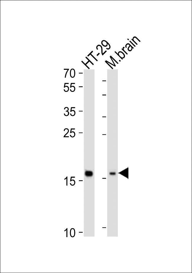 TMEM160 Rabbit anti-Human, Mouse, Polyclonal, Invitrogen 400 µL; Unconjugated