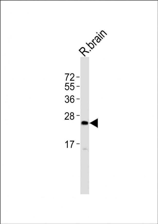 UPK2 Rabbit anti-Rat, Polyclonal, Invitrogen 400 µL; Unconjugated