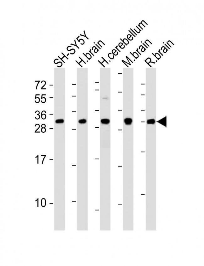 FGF14 Rabbit anti-Human, Mouse, Rat, Polyclonal, Invitrogen 400 µL;