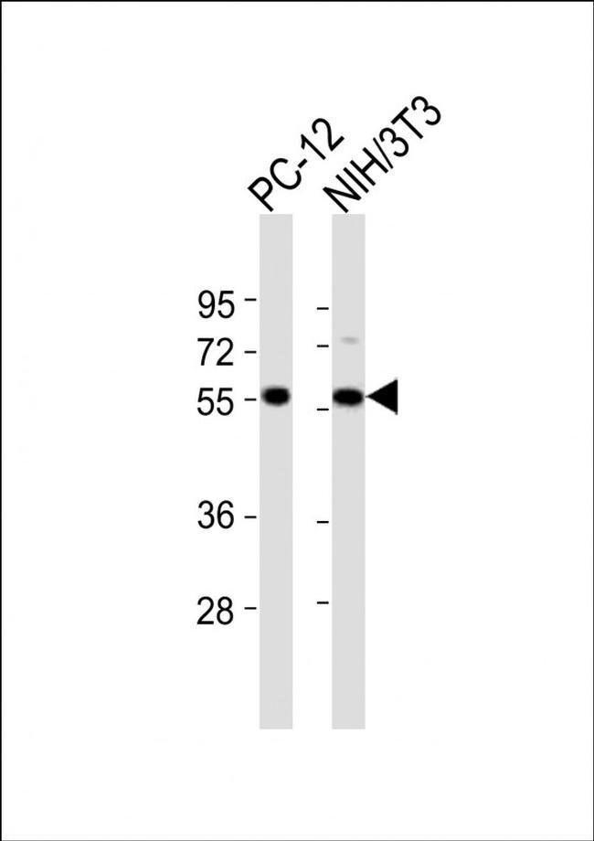 DGCR14 Rabbit anti-Human, Mouse, Rat, Polyclonal, Invitrogen 400 µL;