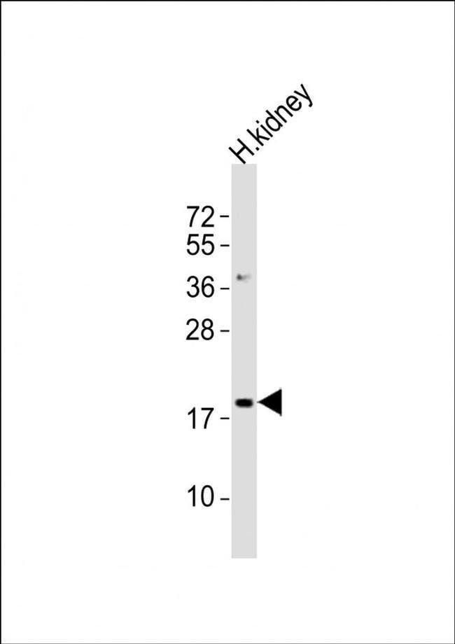 NFE4 Rabbit anti-Human, Polyclonal, Invitrogen 400 µL; Unconjugated