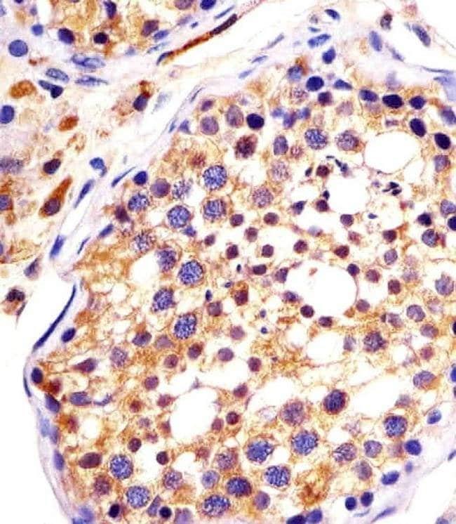 DYNC1H1 Rabbit anti-Human, Mouse, Polyclonal, Invitrogen 400 µL; Unconjugated