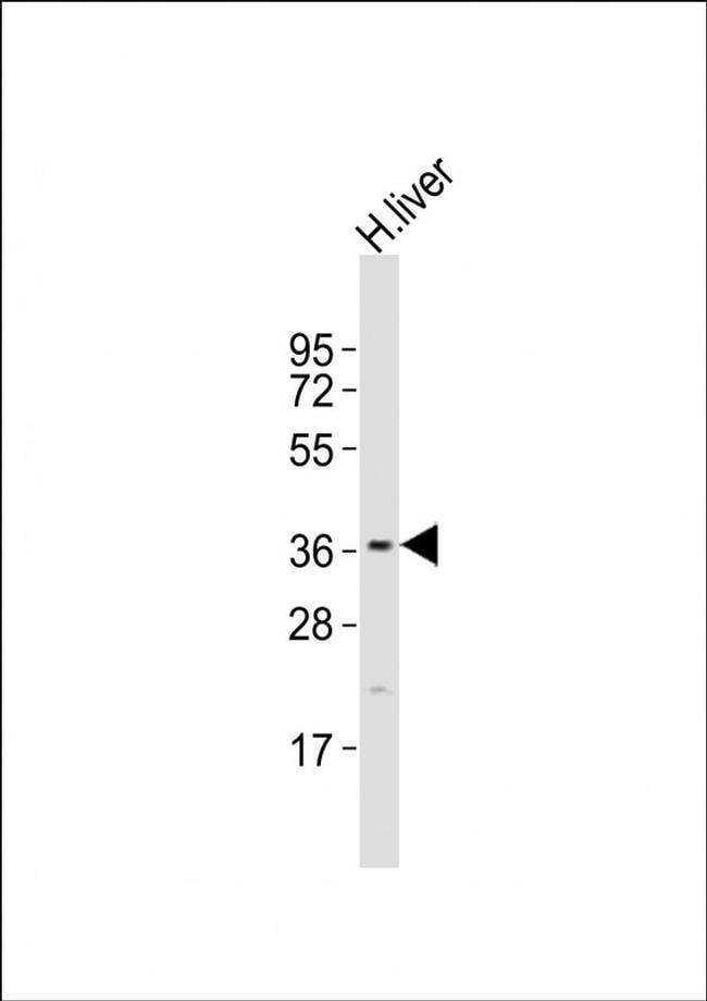 DAO Rabbit anti-Human, Polyclonal, Invitrogen 400 µL; Unconjugated