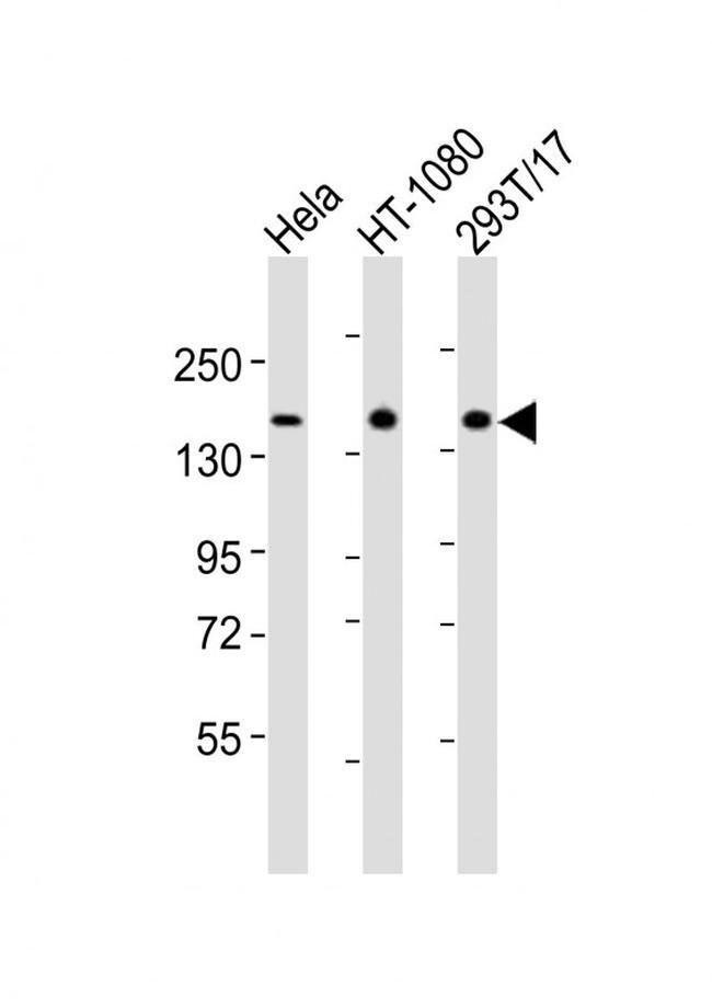 RAPGEF2 Rabbit anti-Human, Polyclonal, Invitrogen 400 µL; Unconjugated