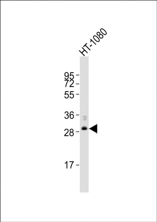 FBXO45 Rabbit anti-Human, Polyclonal, Invitrogen 400 µL; Unconjugated