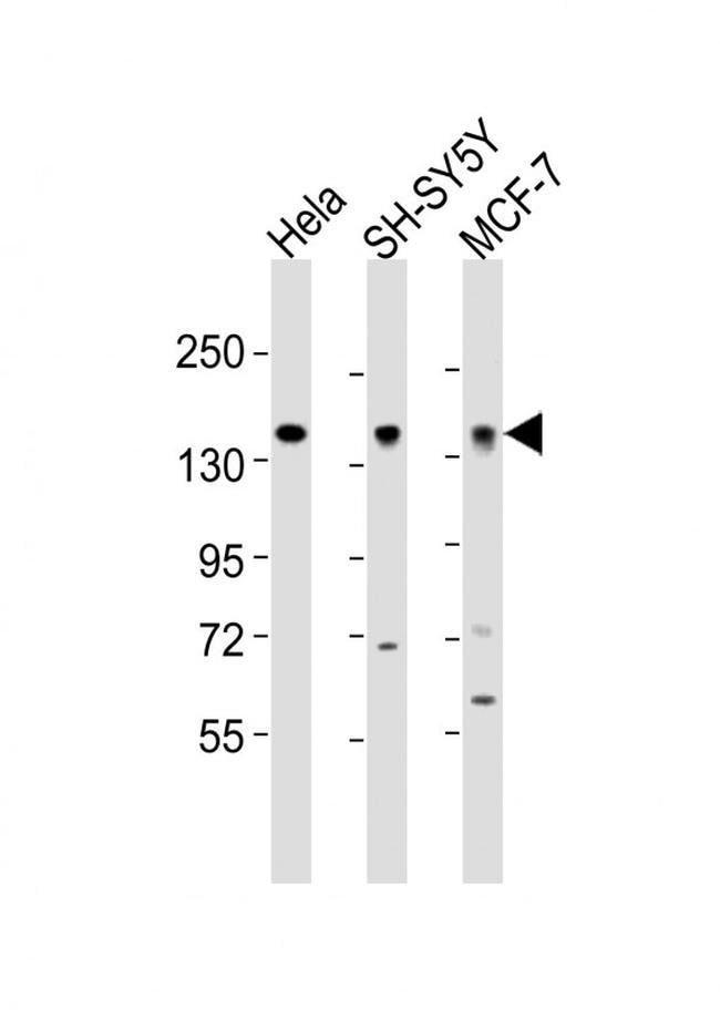 MAML2 Rabbit anti-Human, Polyclonal, Invitrogen 400 µL; Unconjugated
