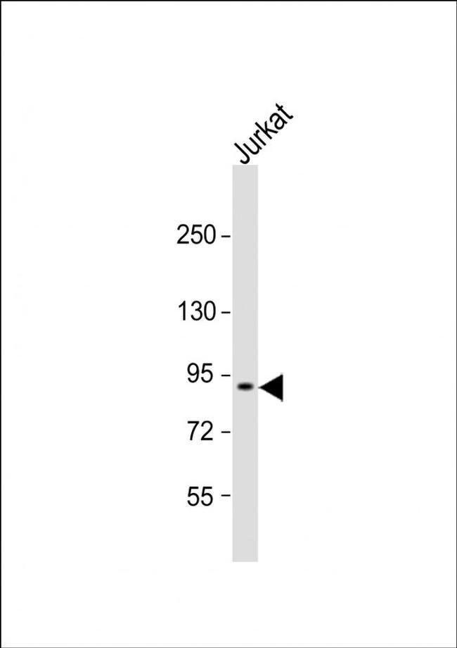 CTAGE6 Rabbit anti-Human, Polyclonal, Invitrogen 80 µL; Unconjugated