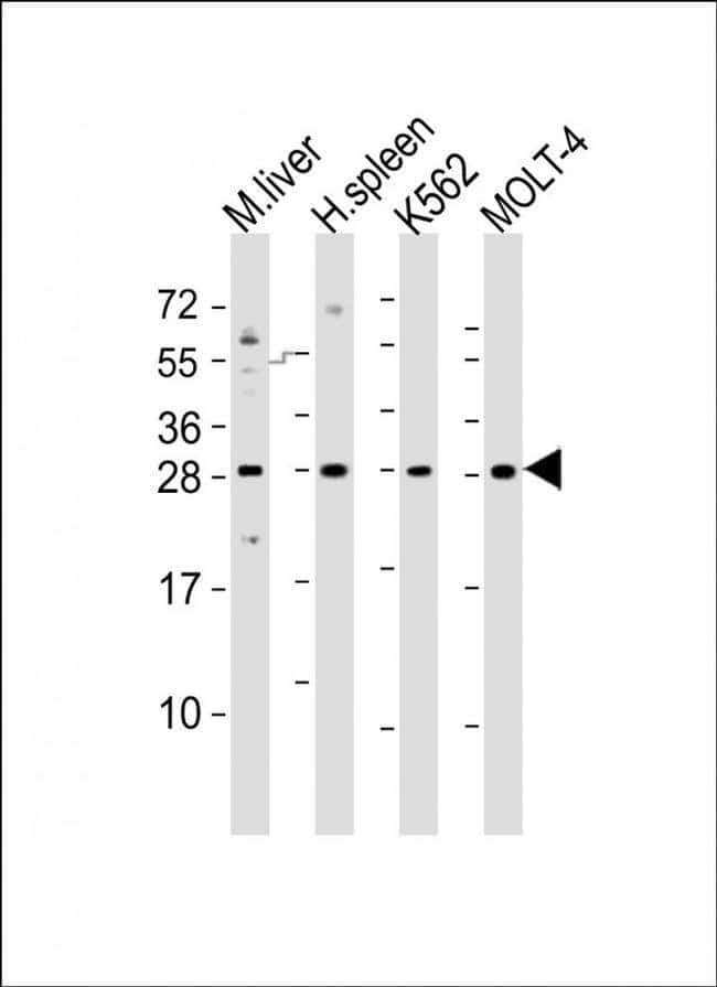 SLA2 Rabbit anti-Human, Mouse, Polyclonal, Invitrogen 400 µL; Unconjugated