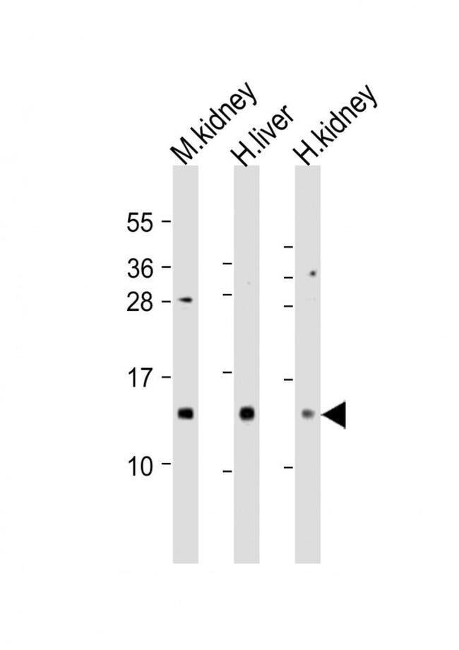 MTCP1 Rabbit anti-Human, Mouse, Polyclonal, Invitrogen 400 µL; Unconjugated