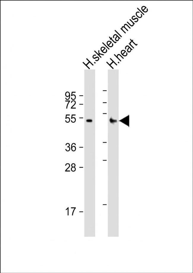 RHBDL1 Rabbit anti-Human, Polyclonal, Invitrogen 200 µL; Unconjugated