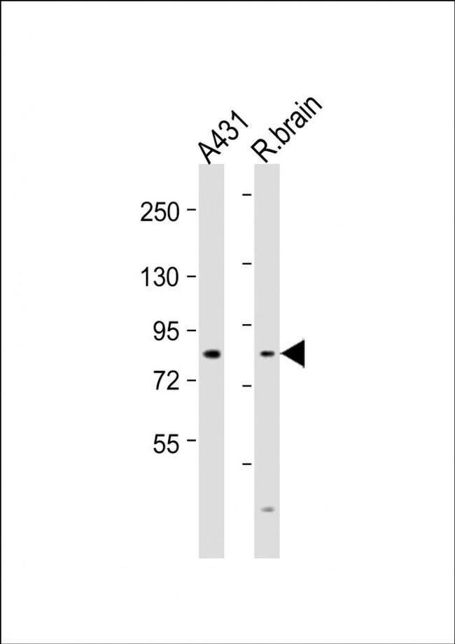 NGEF Rabbit anti-Human, Rat, Polyclonal, Invitrogen 200 µL; Unconjugated