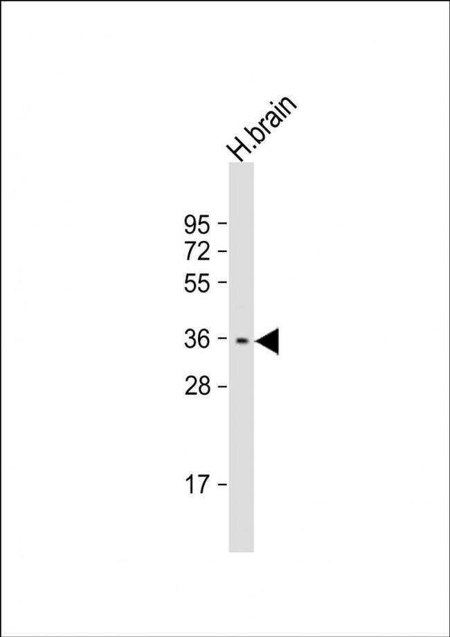 STPG1 Rabbit anti-Human, Polyclonal, Invitrogen 50 µL; Unconjugated