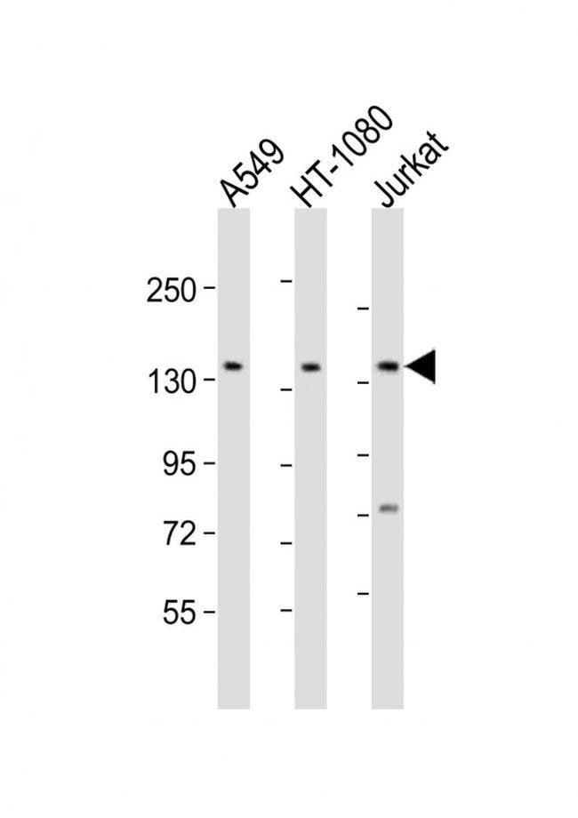 FMN1 Rabbit anti-Human, Polyclonal, Invitrogen 50 µL; Unconjugated