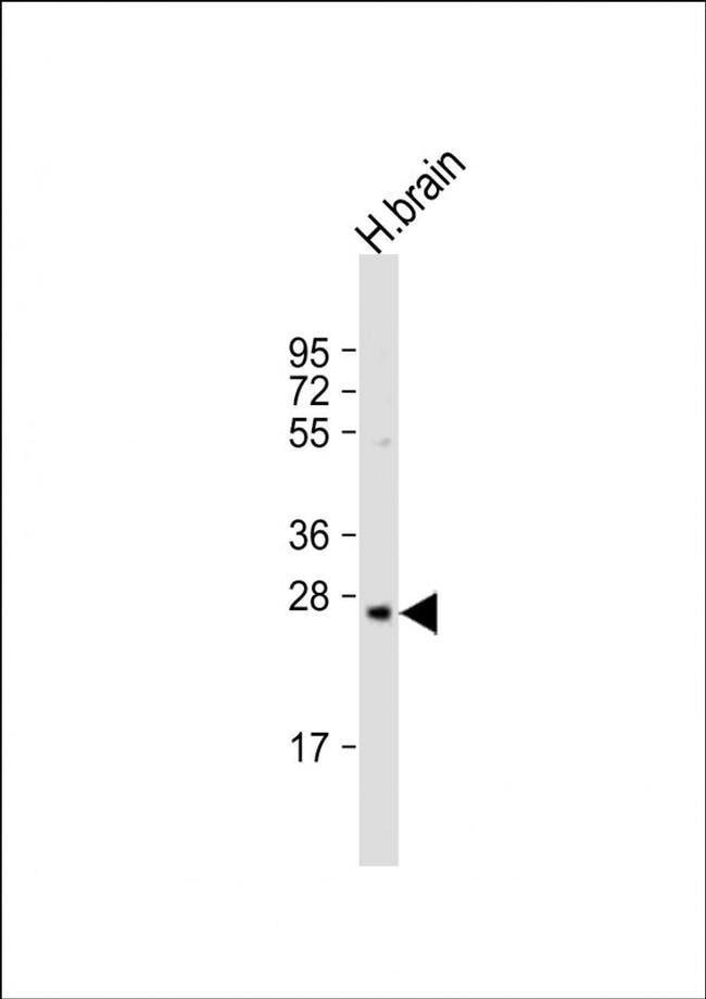 PRSS33 Rabbit anti-Human, Polyclonal, Invitrogen 200 µL; Unconjugated